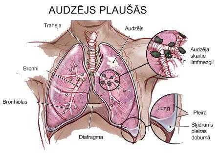 kā ātrāk saslimt ar plaušu vēzi)